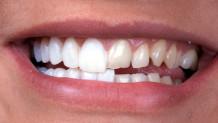 Porselen Diş Tedavisi Nasıl Yapılır?