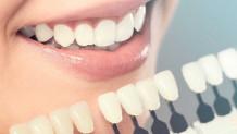 Porselen Dişin Faydaları Nelerdir?
