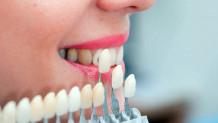 Zirkonyum Diş Çeşitleri Nelerdir?