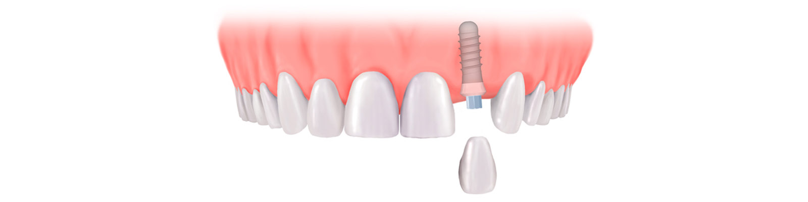 İmplant Diş Hastanesi Türkiye