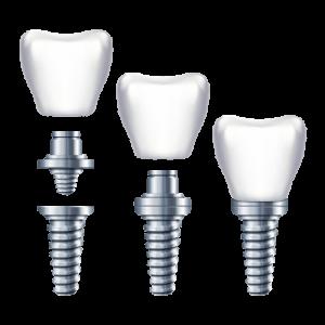 Türkiye implant