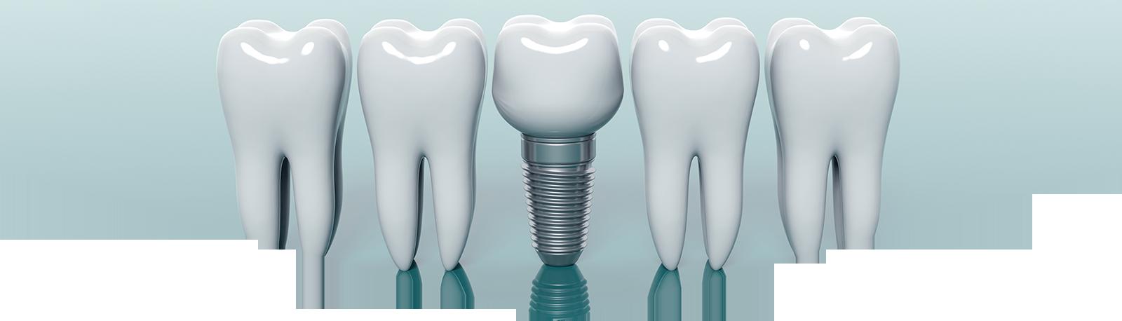 Türkiye Diş İmplantı