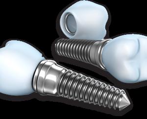 Türkiyede diş implant fiyat