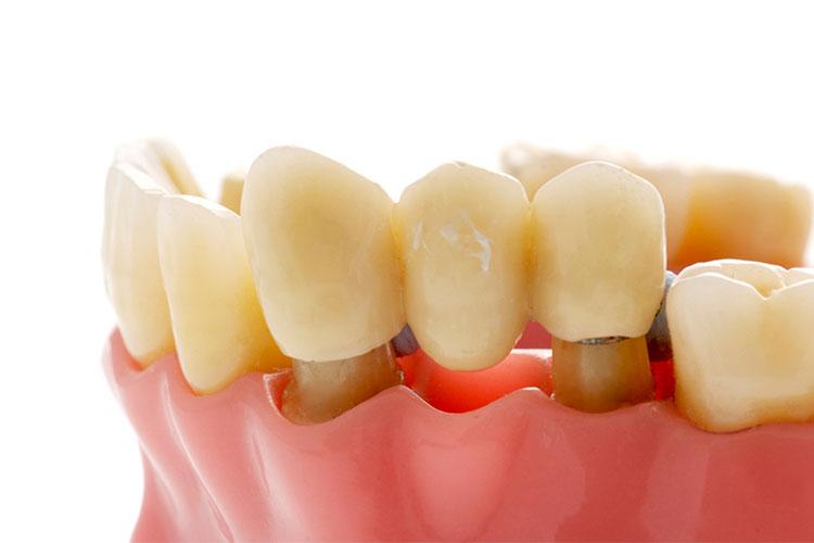 Dolgu diş izmir