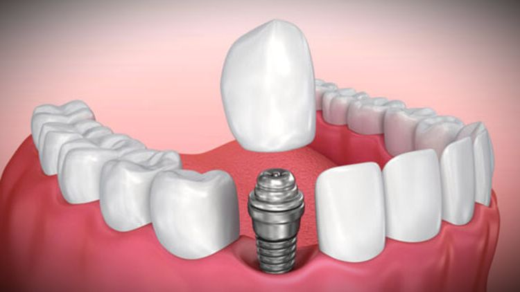implant dis tedavisi