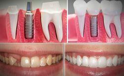 implant dis tedavisi nasil yapilir