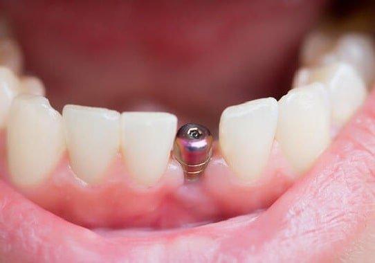 implant dis fiyatlari