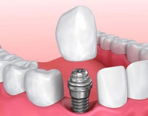 robotik implant faydalari