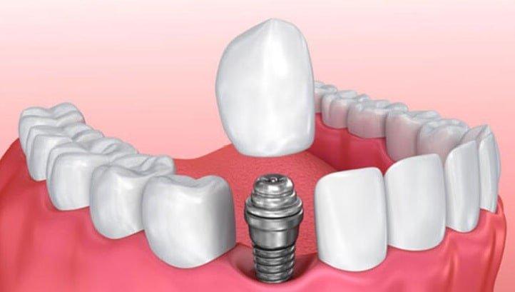 robotik implant tedavisi